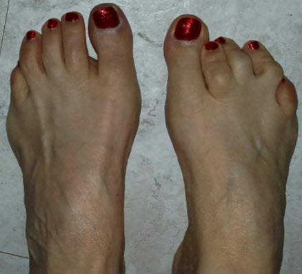 1-5-2016-Feet-Cropped-Red-polish