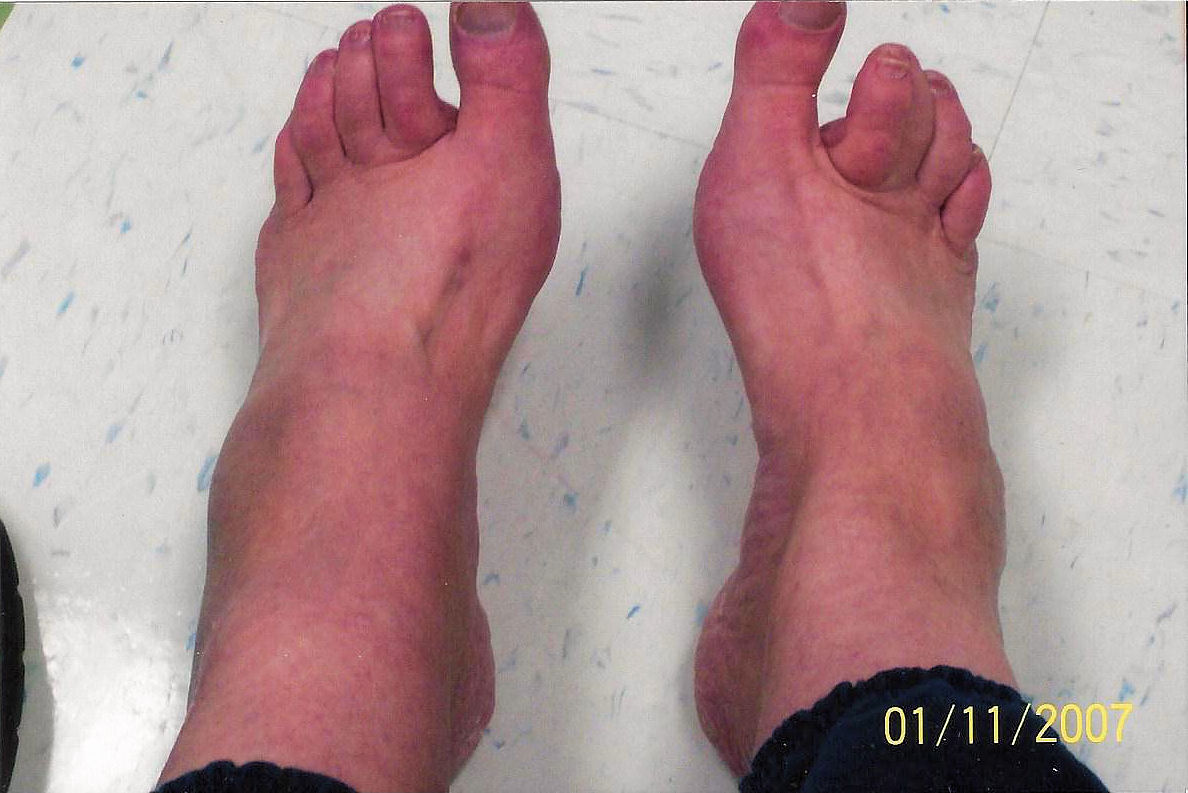 This shows how my feet would swell within a couple of minutes when I would put them on the floor. Photos taken in January 2007.