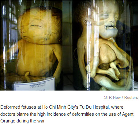 Agent orange deformed babies